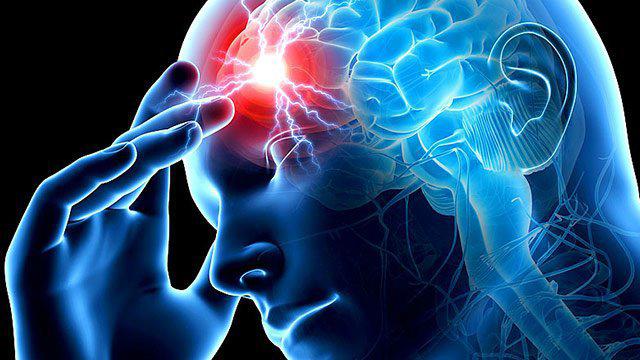 """""""O AVC nada mais é do que um entupimento ou rompimento de uma veia ou artéria no cérebro. Com isso falta oxigênio o que pode afetar os neurônios, e trazer sequelas grave"""", diz neurologista Pedro Magalhães   Imagem Divulgação"""
